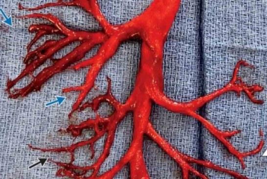 Hombre expulsa impresionante coágulo de sangre tras ataque de tos