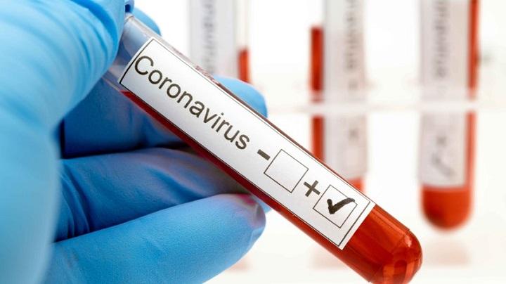 La cifra de personas contagiadas por coronavirus sube a 36 en Honduras