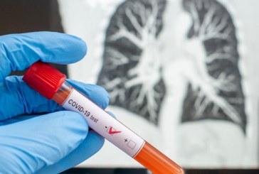 Honduras confirma un nuevo fallecimiento por COVID-19 elevando la cifra a 26 y 407 contagios